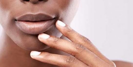 Avec l`harmattan, essayez cette astuce pour ne plus avoir les lèvres gercées