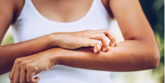 Problèmes de peau : ce nouveau symptôme du Covid-19 qui alarme le corps médical