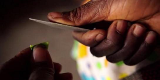 """""""Il a ouvert mes cuisses et il a commencé à couper"""" : après une excision, Amina tente de se reconstruire"""