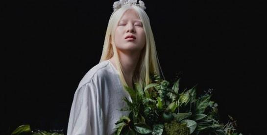 Une albinos abandonnée lorsqu'elle était bébé est devenue mannequin pour Vogue