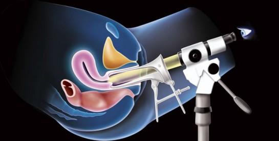 Cancer du col de l'utérus : ``pourquoi je pense que c'est un problème masculin``